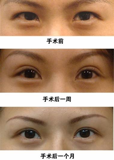 韩式双眼皮对比_做三点定位双眼皮多久可以恢复-三点定位双眼皮做宽了多久可以 ...