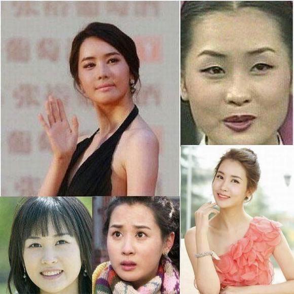 韩国明星李多海整容_李多海《变脸女王》整容上瘾大变样 - 明星整形 - 炫美网