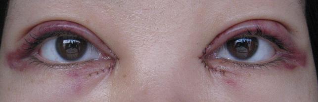 mm开眼角加割双眼皮恢复全过程(643x207)-哪里割双眼皮最好 割