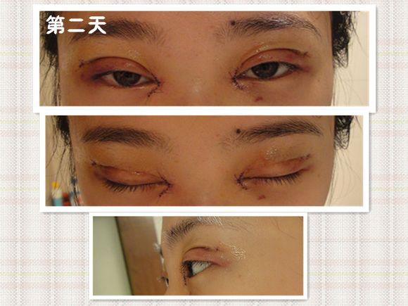 刚刚割完双眼皮之后的样子_我的双眼皮手术加开眼角给大家看看 - 双眼皮手术分享经历 - 炫美网