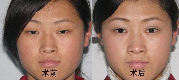 割双眼皮前后对比照片整形案例 杭州同欣整形美容医院