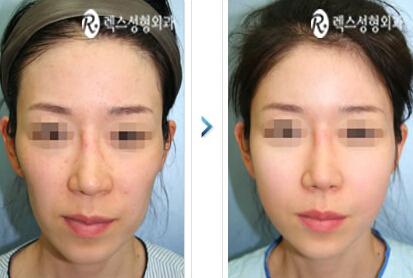 全脸脂肪填充对比案例整形案例 - 韩国rex整形外科