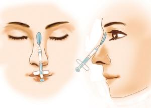 自己注射玻尿酸隆鼻_韩国玻尿酸注射隆鼻多少钱 - 隆鼻材料 - 炫美网