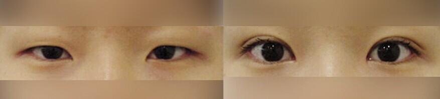 """开内眼角适用人群 1.内眼角周围有赘肉、畸形的爱美者,通过开内眼角使眼睛看起来更加明亮。 2.两眼之间间距较宽,不符合东方审美""""三庭五眼""""的爱美者,通过开内眼角使眼睛距离拉近,看起来更为协调。 开外眼角适用人群 1.上眼睑有下垂的爱美者,通过开外眼角还可以改善轻微的下垂问题。 2."""