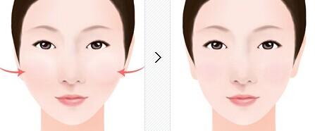 脸部骨头结构图