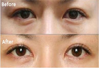 杭州时光去眼袋手术对比图