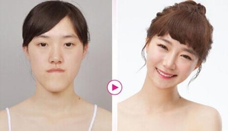 韩国Let美人整形项目价格图片