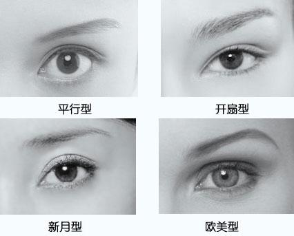 新月型和欧式双眼皮