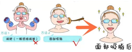 武汉艺星整形医院面部吸脂需要多少钱