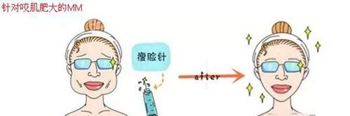 杭州时光整形瘦脸针