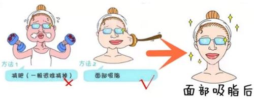 杭州时光整形面部吸脂