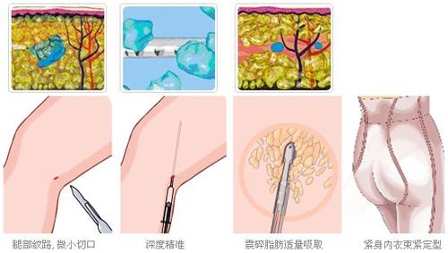 小腿的脂肪分布和身体其它部位脂肪的构造不同