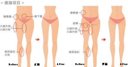 大腿组成结构图
