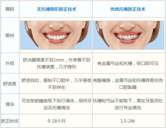 隐形牙齿矫正VS传统箍牙