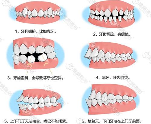 牙齿不整齐情况