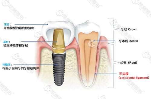 种植牙的牙侧面图解