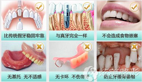 种植牙优点国产和进口有区别吗