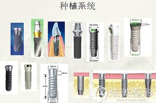 种植牙系统多样化,国产进口各不相同