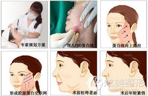 面部埋线过程以及前后对比案例