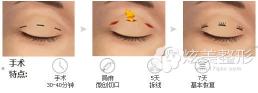 韩式三点双眼皮手术原理,会不会留疤
