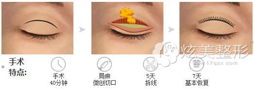 切开法双眼皮会留疤,不适合疤痕体质