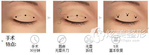 埋线双眼皮手术原理,会留疤吗