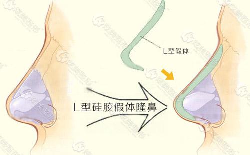 L型隆鼻假体材料