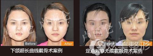 卢丙仑专家磨骨改脸型案例
