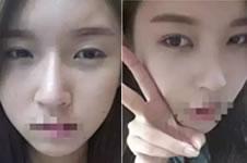 95后美女的小清新韩式双眼皮