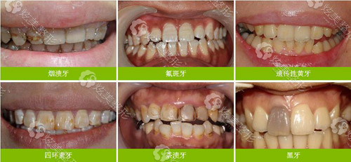 想做牙齿美白的不同牙齿变色情况