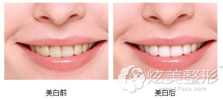 皓齿美白牙齿前后对比案例