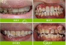 杭州牙齿美白医院推荐及价格表