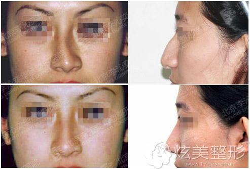 歪鼻矫正案例对比图