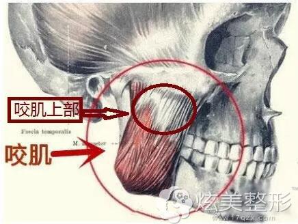 咬肌注射位置