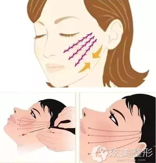 面部埋线作用位置及原理