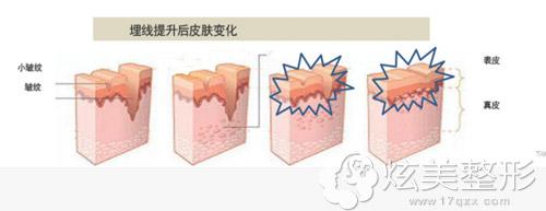 面部埋线体生后皮肤变化