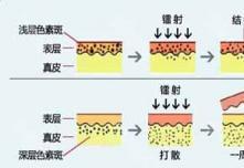 杭州市第三人民医院激光祛斑哪个专家效果好 有没有案例