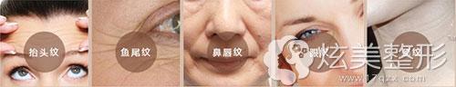 珠海莱茵整形傅仙香专家除皱抗衰怎么样 塑美极让你逆龄生长