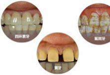 北京康贝佳医院孙晋专家告诉你瓷贴面和烤瓷牙该如何选择