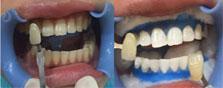 【案例分享】来南京康美整形冷光美白后她的牙齿白出新高度