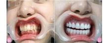 【案例】在西安百思美口腔做隐形牙齿矫正后 脸型居然都变美了