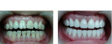 苏州美奥口腔张西云案例分析:四环素牙超薄瓷贴面牙齿美白