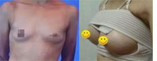 【真人案例】四川娇点乳头再造+假体隆胸术为我打造美胸过程
