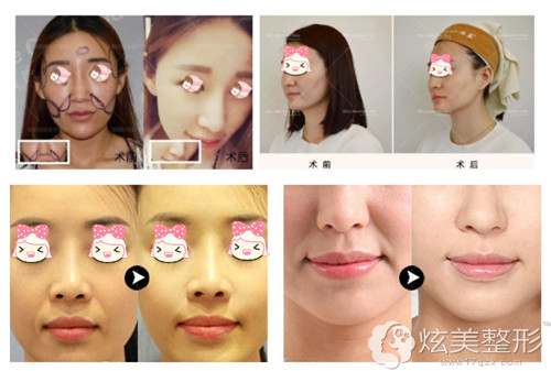 北京奥德丽格专家陈利利祛除鼻唇沟案例