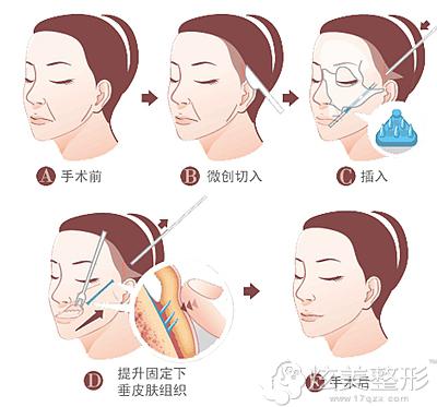 面部吸脂除皱手术祛除鼻唇沟