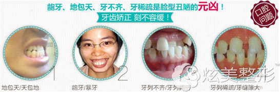 龅牙、地包天、牙不齐、牙稀疏多种牙齿问题需要矫正