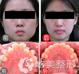 李志杰专家真实案例矫正牙齿