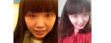 【案例】18岁高中兔牙妹去深圳美莱口腔科矫正牙齿全过程纪实