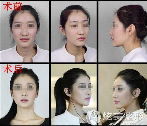 徐航医生鼻综合真人整形案例前后对比
