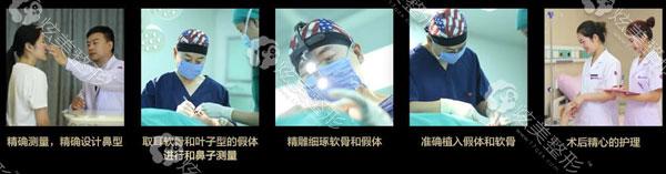 隆鼻医生徐航达拉斯鼻综合整形过程